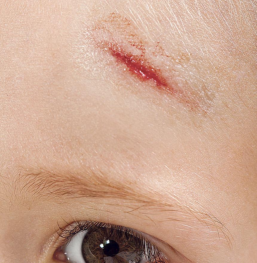 Eine Verletzung am Kopf eines Kindes. Thema: Narbenpflege
