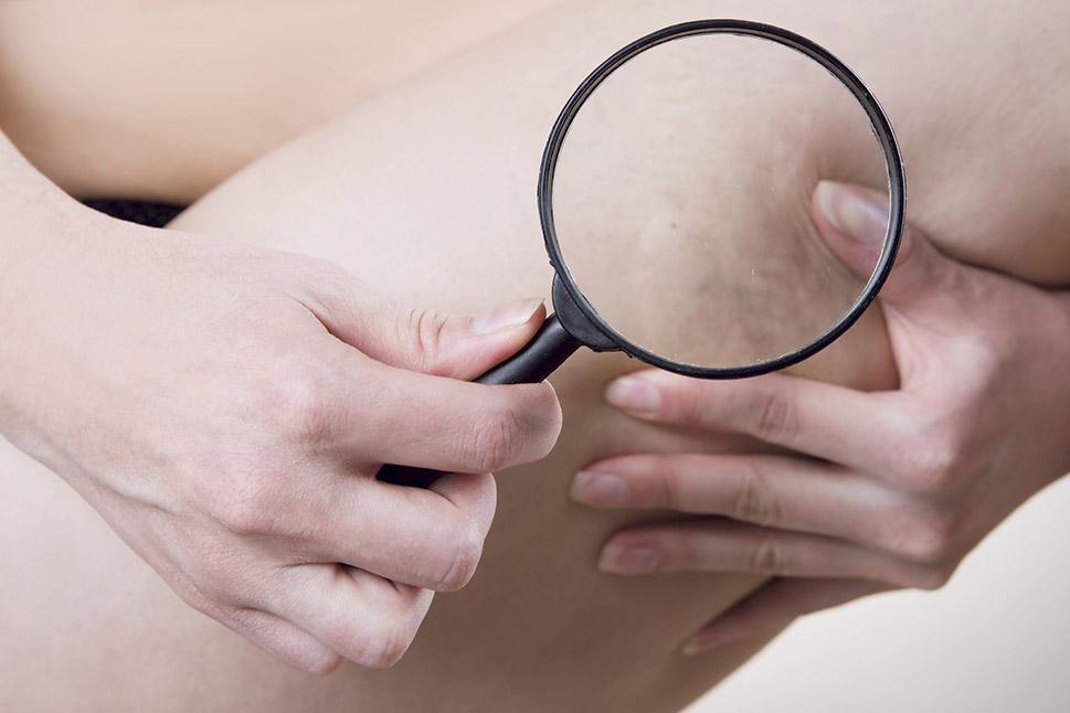 Eine Frau richtet eine Lupe auf ihren Oberschenkel. Thema: Krampfadern