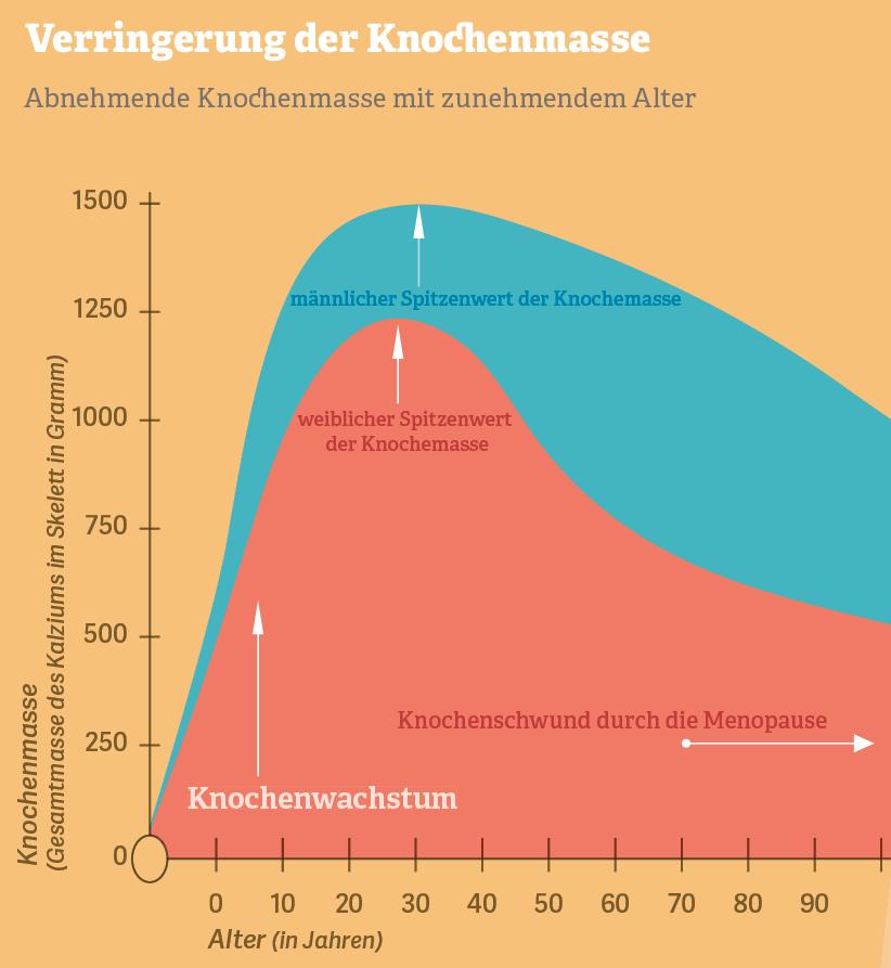 Grafik: Verringerung der Knochenmasse