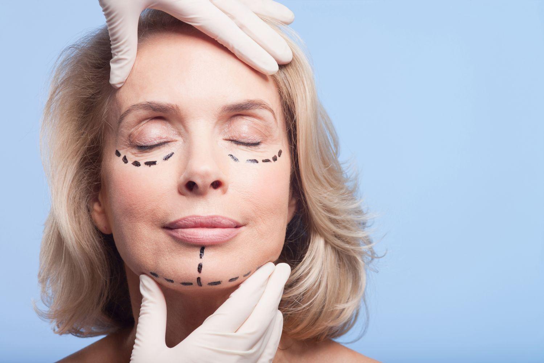 Gesicht vor einer Schönheitsoperation: behandelnde Stellen sind gekennzeichnet, Thema: Schönheits-OP im Ausland