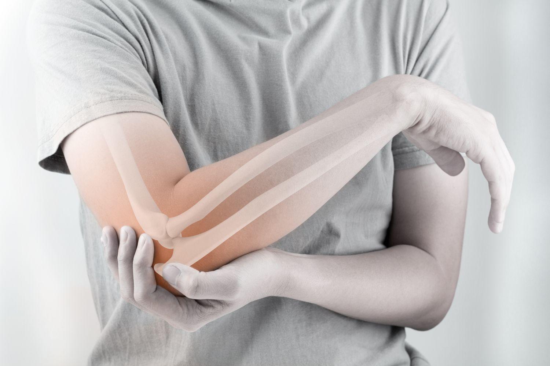 Mann hält sich den Ellenbogen, unter der Haut sind die Knochen sichtbar. Thema: Knochen aus Stammzellen
