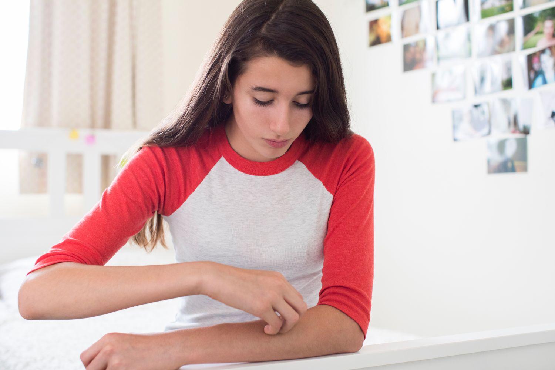 Junge Frau, die sich am Arm kratzt. Thema: Neurodermitis